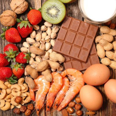 Nuts, fruit, milk, eggs and shellfish are a few common allergens.