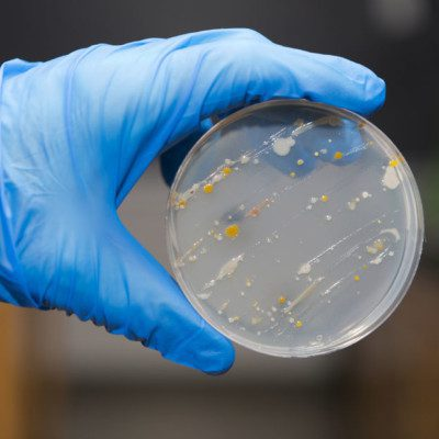 A microbial control program plays a key role in controlling pathogenic microorganisms in food.