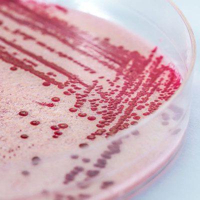 Listeria is a Gram positive, non-spore-forming, motile foodborne pathogen.